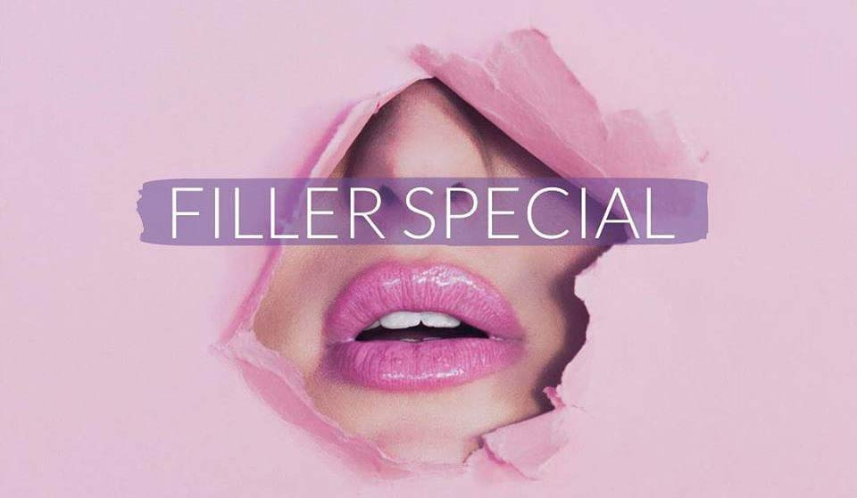 Filler Day Special