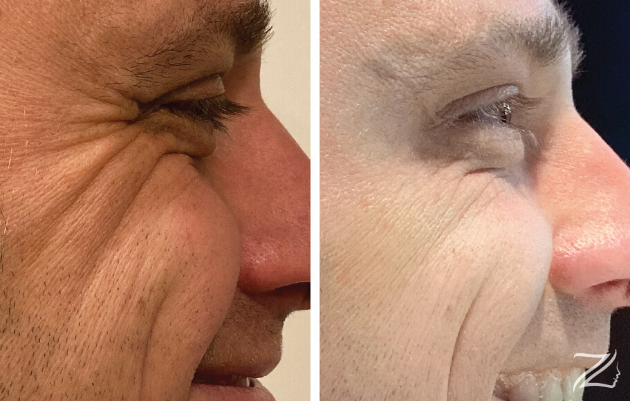 Xeomin Treatment Before and After