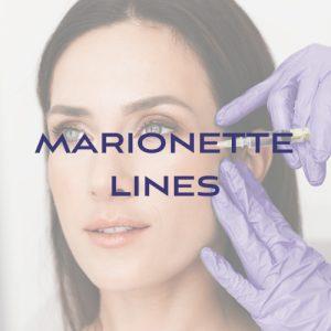 Filler: Marionette Lines