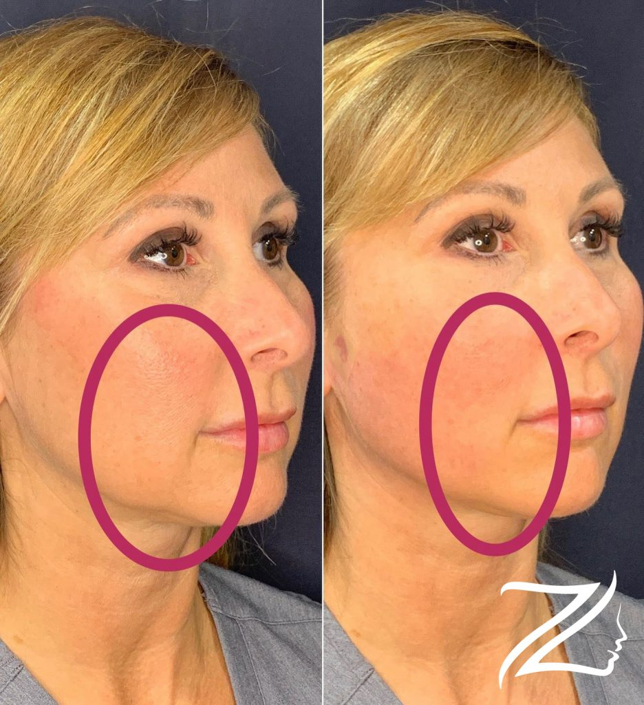 PDO Lower Face Jawline Lift